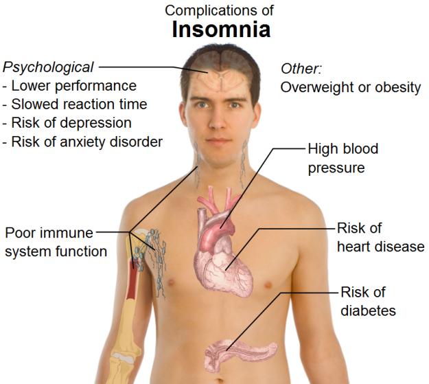 insomnia-complications